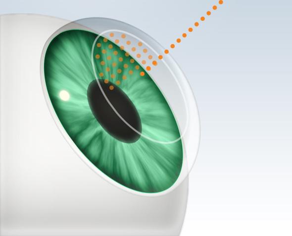 cirurgia a laser oftlamoclinica