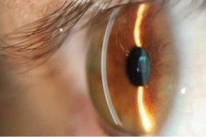 catarata curitiba biometria ocular