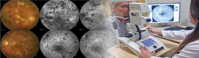 Angiofluoresceinografia