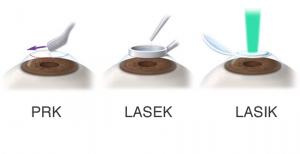 tipos-cirugia-laser