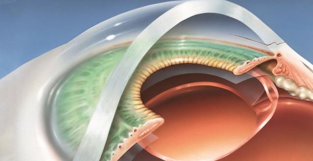 cirurgia de catarata em Curitiba com tecnologia 3D